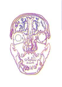 MRI wire print2